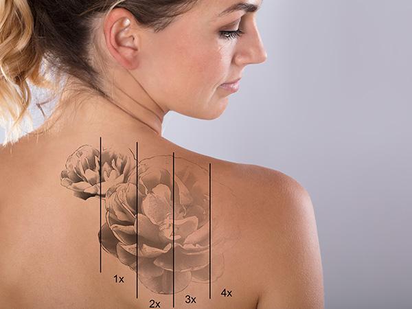 MOOCI: Dr. Petra Hirtler über Tattooentfernung